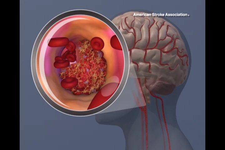 New study reveals 'startling' risk of stroke