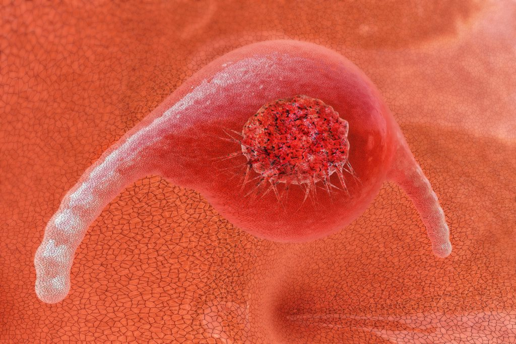 Newly developed diagnosis of cancer, detect tumors, for the first time with one hundred percent detection rate