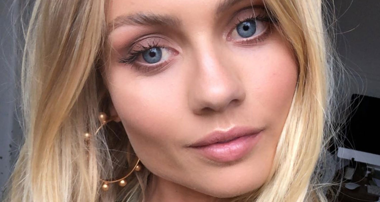 Elyse Knowles Shares Graphic Pictures After Eye Surgery