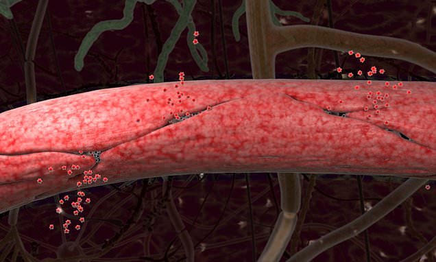 Leaky blood vessels in brain can predict Alzheimer's disease