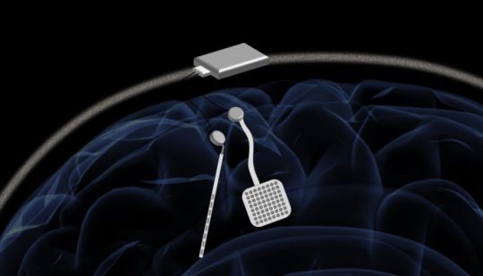 Wireless 'pacemaker for the brain' could offer new treatment for neurological disorders: Device fine-tunes treatment by stimulating and and recording electric current in the brain at the same time