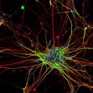 Clues into early development of autism spectrum disorder: Neurons from people with autism exhibit different patterns of growth and develop at a faster rate