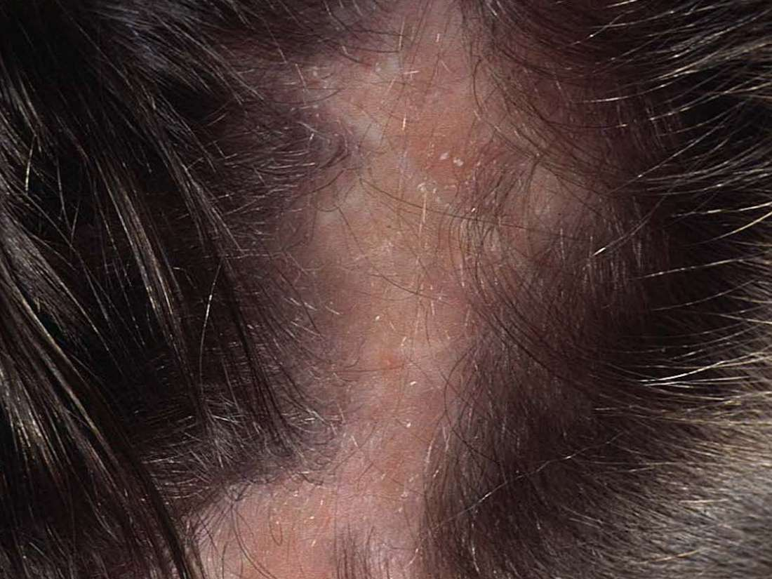 Scalp infections: Causes, symptoms, treatments, and pictures