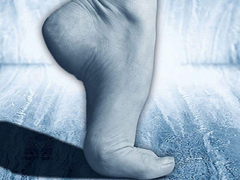 Exercise injury prevention: Protecting your ankles