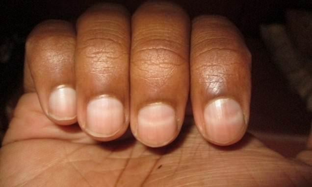 Mountain climb leaves a man with white stripes on his fingernails