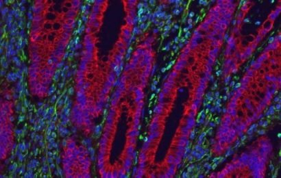 Potential new therapy for Crohn's, colitis identified: Alternative to anti-inflammatory therapies reduces IBD symptoms in mice