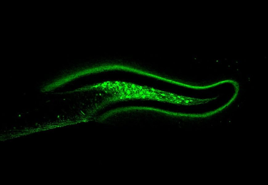 Scientists find brain mechanism that naturally combats overeating