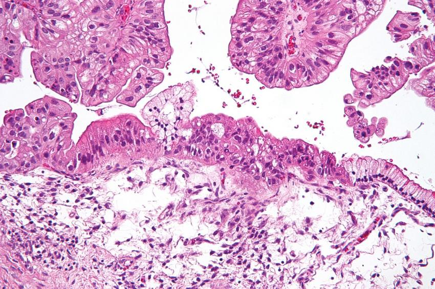 Targeting stem-like cells could prevent ovarian cancer recurrence