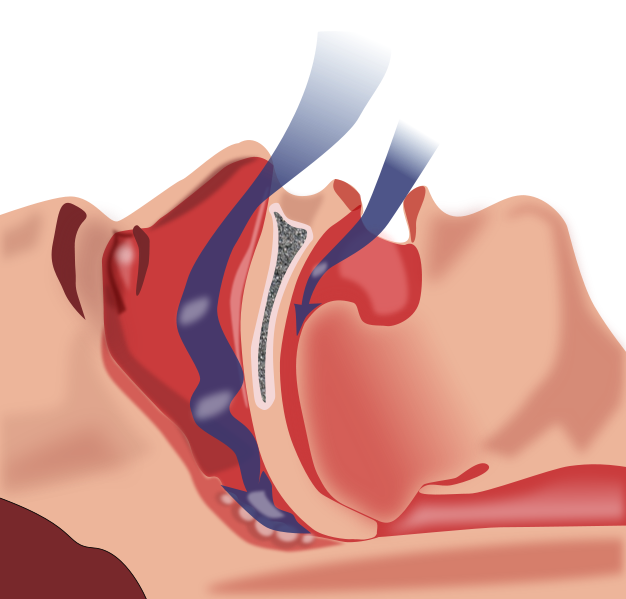 Have sleep apnea? Using your CPAP device consistently may slow memory loss