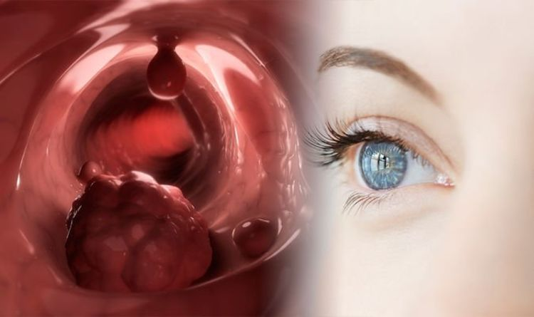 Cancer symptoms: Seven signs of the deadly disease to watch out for in your eyes