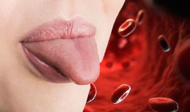 Vitamin B12 deficiency symptoms: The sign in your tongue you are lacking B12