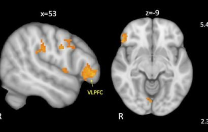 Behavioral disorders in kids with autism linked to reduced brain connectivity