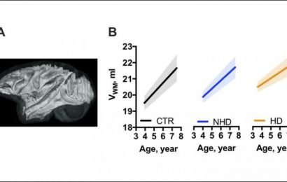 Brain growth inhibited by heavy alcohol use