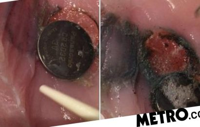 Woman uses chicken breasts to show the effects of swallowing a button battery