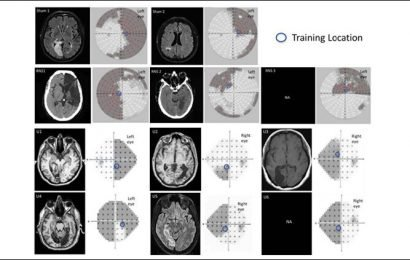 Brain stimulation enhances visual learning speed and efficiency