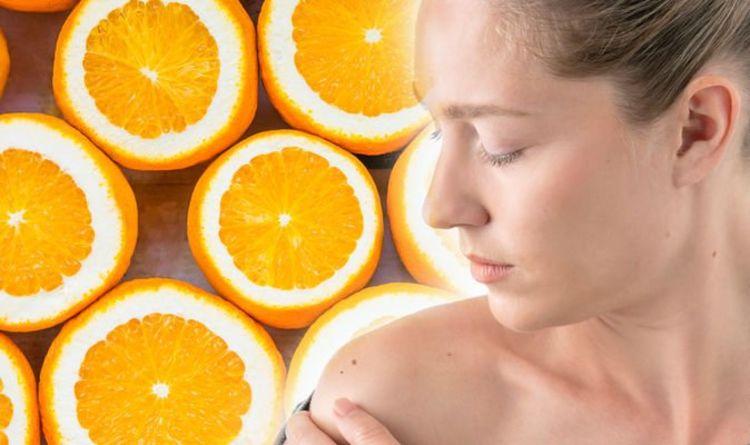 Vitamin C deficiency: Major skin symptom that could mean you have a vitamin C deficiency