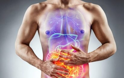 Food additive E171 destroyed our intestinal flora and promotes intestinal inflammation and colon cancer