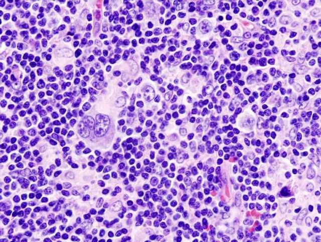 Why Hodgkin's lymphoma cells grow uncontrollably