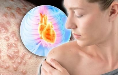 Heart attack warning – does your skin look like this? Hidden signs revealed