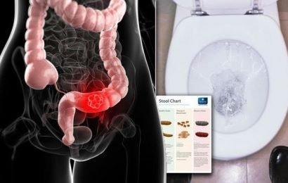 Bowel cancer warning – does your poo look like this? The consistency of stool to avoid