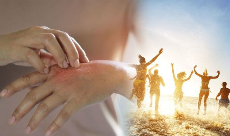 Eczema: How to avoid triggering eczema symptoms in hot weather