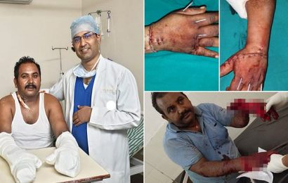 Surgeons reattach the hands of a man who was attacked with a sword