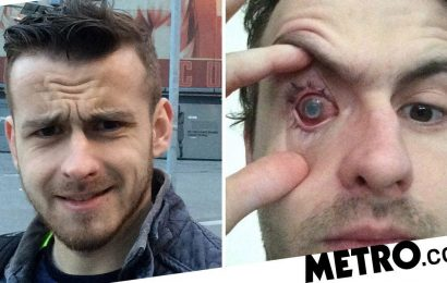 Man blinded by parasite living in eye after he showered with contact lenses in