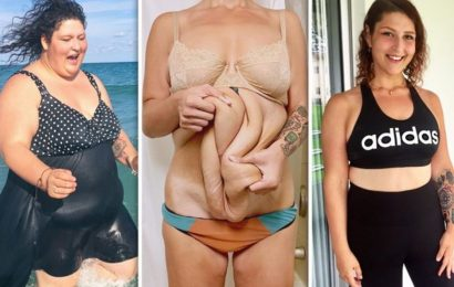 Super-slimmer gets 10lbs of excess skin removed after halving her body weight