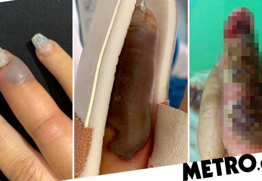 Woman's finger swelled and turned black after getting a salon manicure