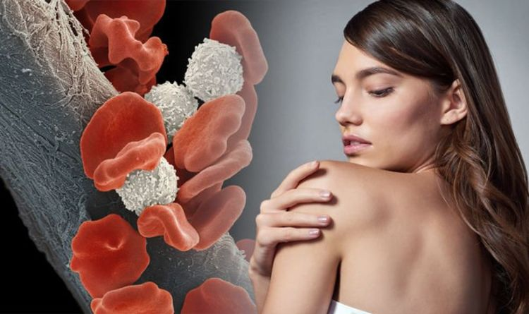 Blood cancer symptoms: The warning sign in your skin that may signal the deadly condition