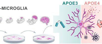 Alzheimer's disease risk gene APOE4 impairs function of brain immune cells