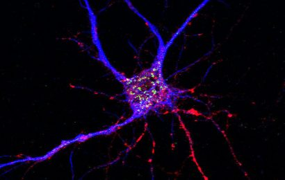 Drug target for Alzheimer's disease has dual action