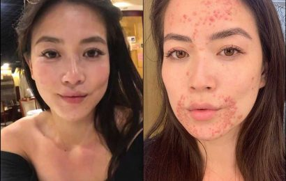 CBS News' Frances Wang Dealing with 'Painful' Skin Condition: 'I'm Very Self-Conscious About It'