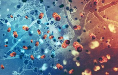 24 times more potent as a chemotherapy drug: researchers now want to destroy the Gold tumors