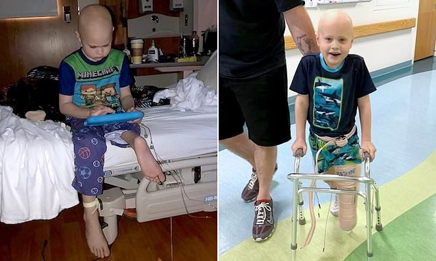 Boy who lost his leg due to cancer gets knee made using his FOOT