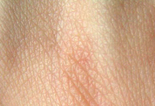 Use of tape strips in early onset pediatric atopic dermatitis