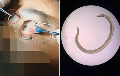 Doctor plucks worms from man's eye after his DOG infected him