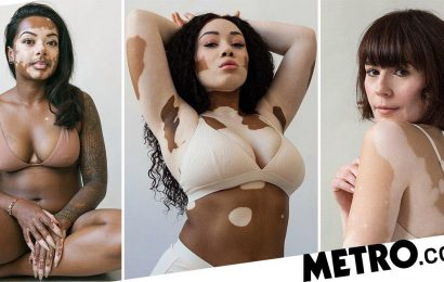Photographer creates series to celebrate vitiligo after developing it herself
