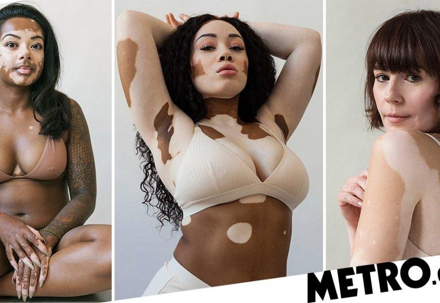 Photographer creates series to celebrate vitiligo after developing it herself