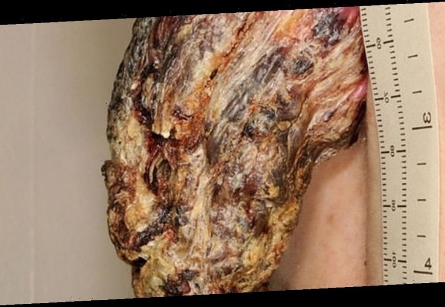 Man has a cancerous, five-inch 'dragon horn' removed from his back
