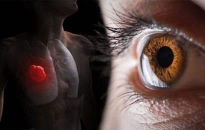 Lung cancer symptoms: The sign in your eye which could signal the deadly disease