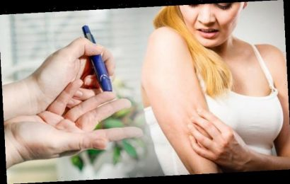 Diabetes type 2 symptoms: The sign in your skin you could be at risk of the condition