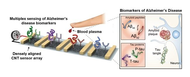 Blood-based multiplexed diagnostic sensor helps to accurately detect Alzheimer's disease