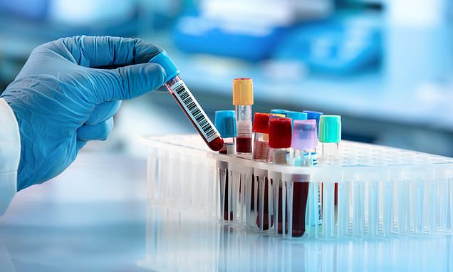 Scientists discover antibody in blood of patient who fought off SARS