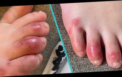 'COVID Toes' May Be a New, Rare Symptom Of Novel Coronavirus, Doctors Say