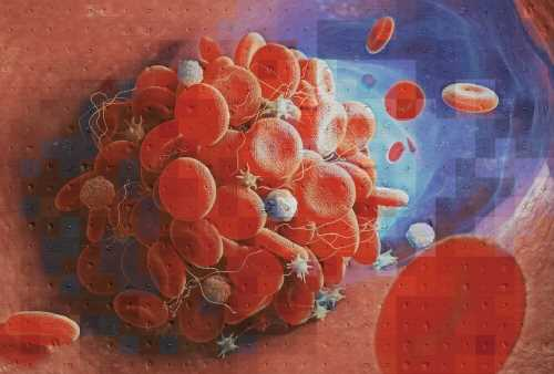 New tool helps distinguish the cause of blood clots