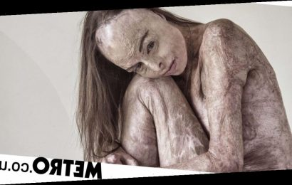 Woman who suffered 85% burns poses naked in powerful photo shoot