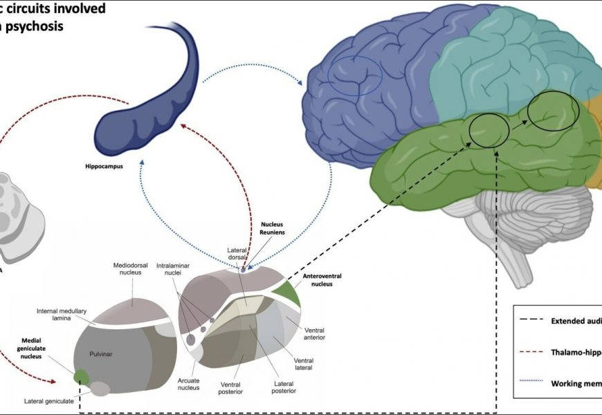 Auditory hallucinations rooted in aberrant brain connectivity