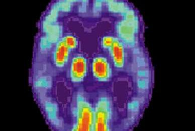 What happens around an Alzheimer plaque?