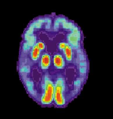 What happens around an Alzheimer plaque?